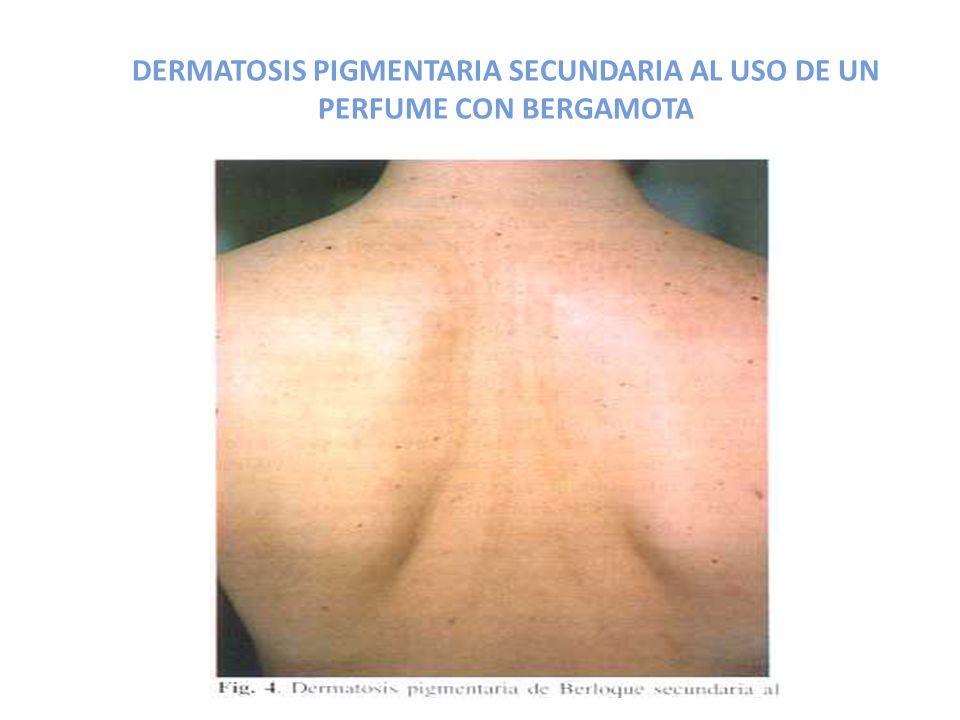 DERMATOSIS PIGMENTARIA SECUNDARIA AL USO DE UN PERFUME CON BERGAMOTA