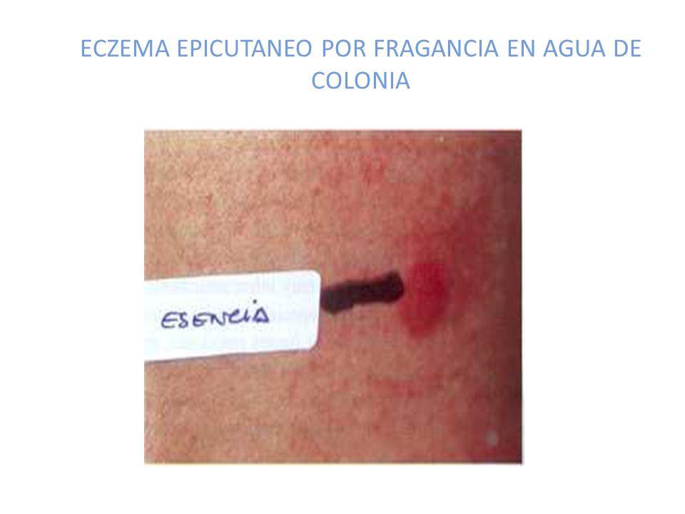 ECZEMA EPICUTANEO POR FRAGANCIA EN AGUA DE COLONIA