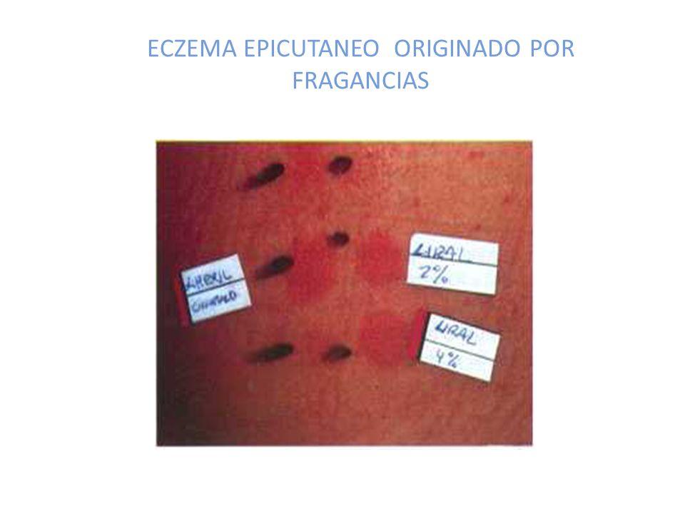 ECZEMA EPICUTANEO ORIGINADO POR FRAGANCIAS