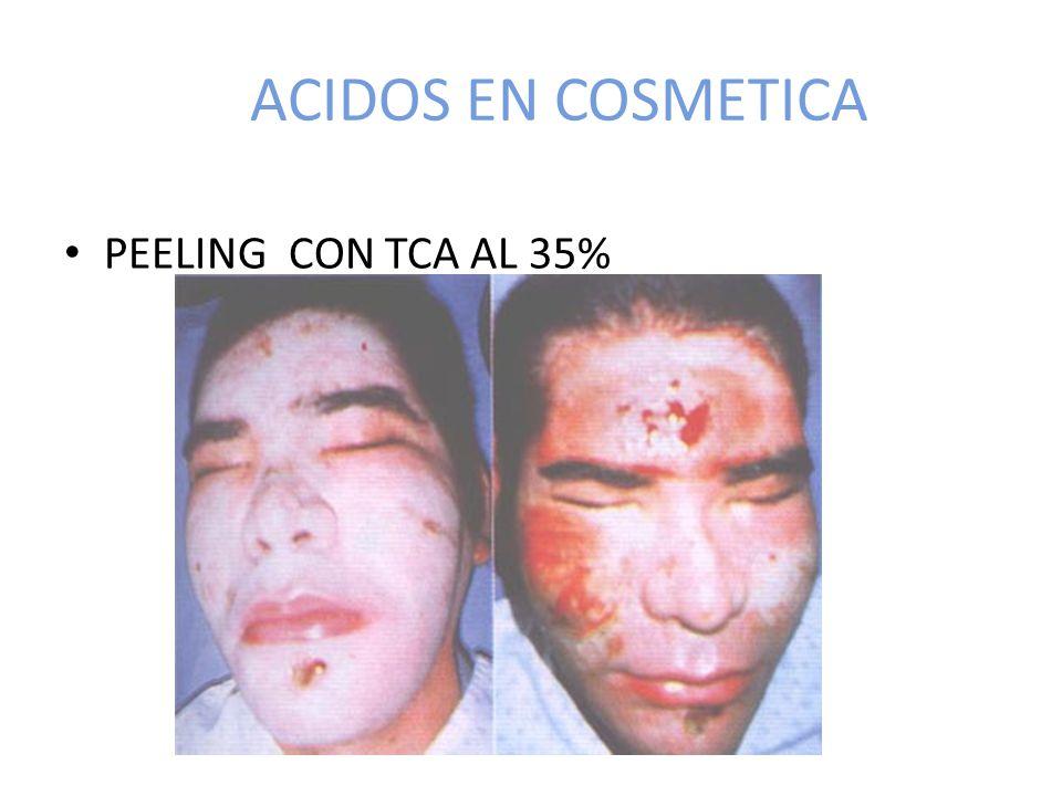 ACIDOS EN COSMETICA PEELING CON TCA AL 35%