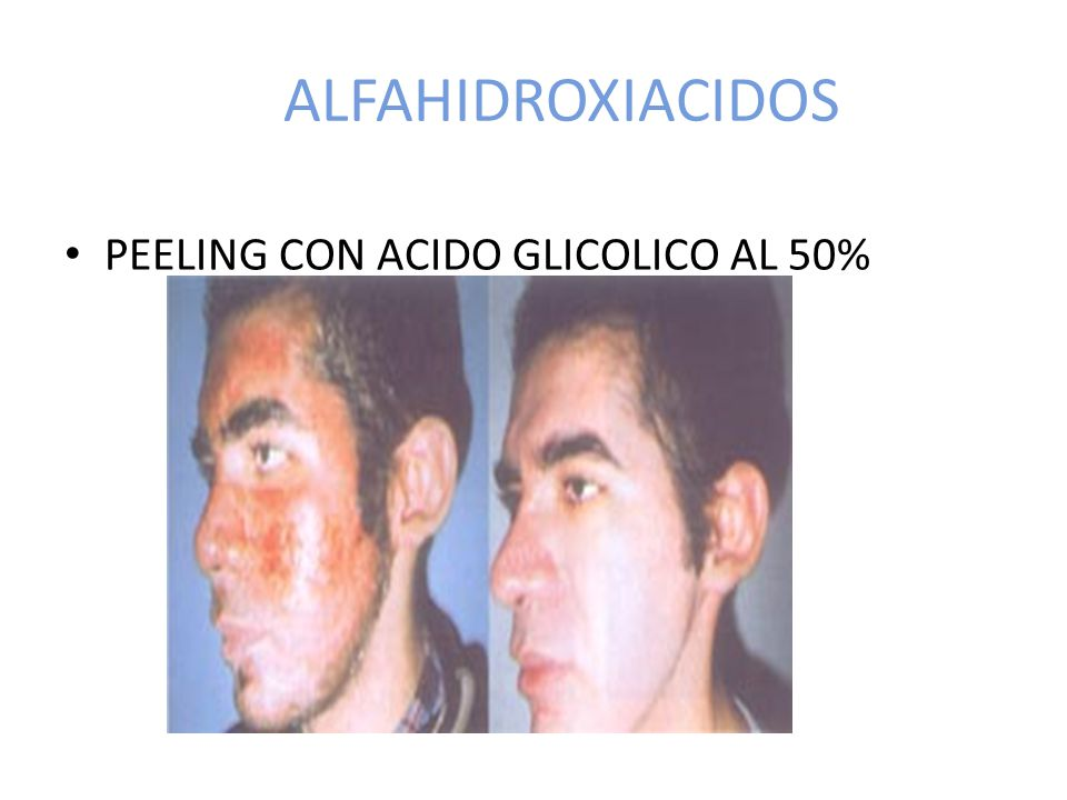 ALFAHIDROXIACIDOS PEELING CON ACIDO GLICOLICO AL 50%
