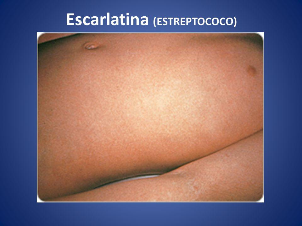 Escarlatina (ESTREPTOCOCO)