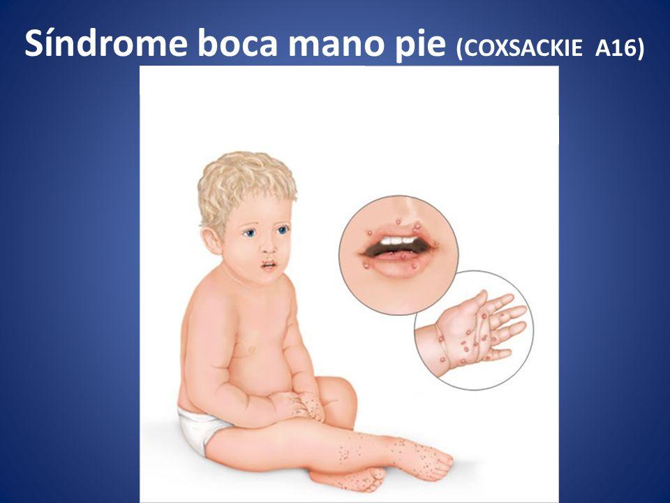 Síndrome boca mano pie (COXSACKIE A16)