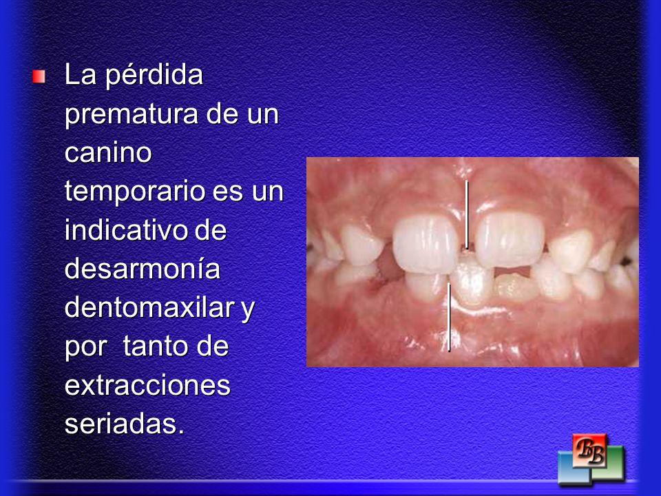 La pérdida prematura de un canino temporario es un indicativo de desarmonía dentomaxilar y por tanto de extracciones seriadas.