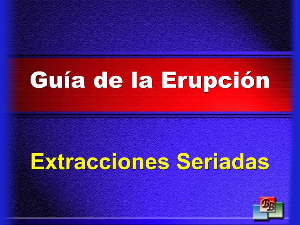 Extracciones Seriadas