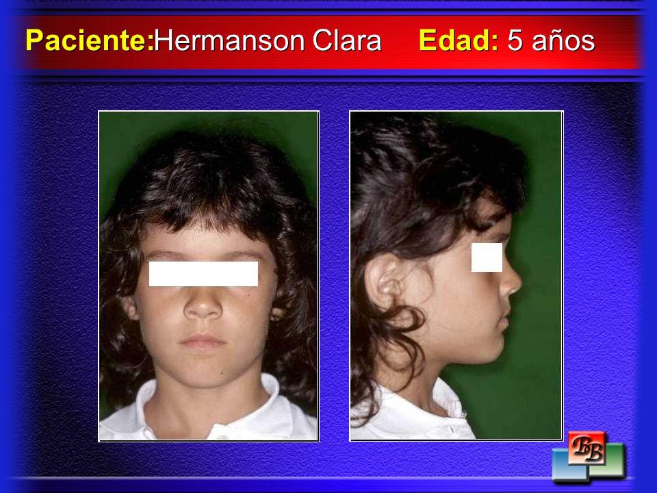 Hermanson Clara Paciente: Edad: 5 años