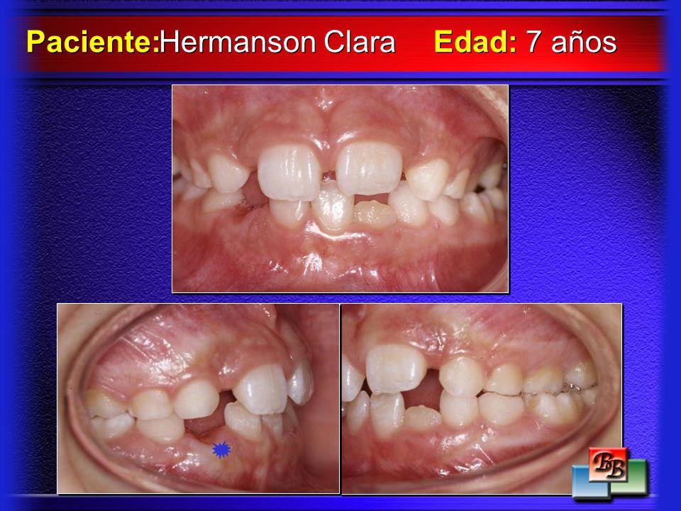 Hermanson Clara Paciente: Edad: 7 años