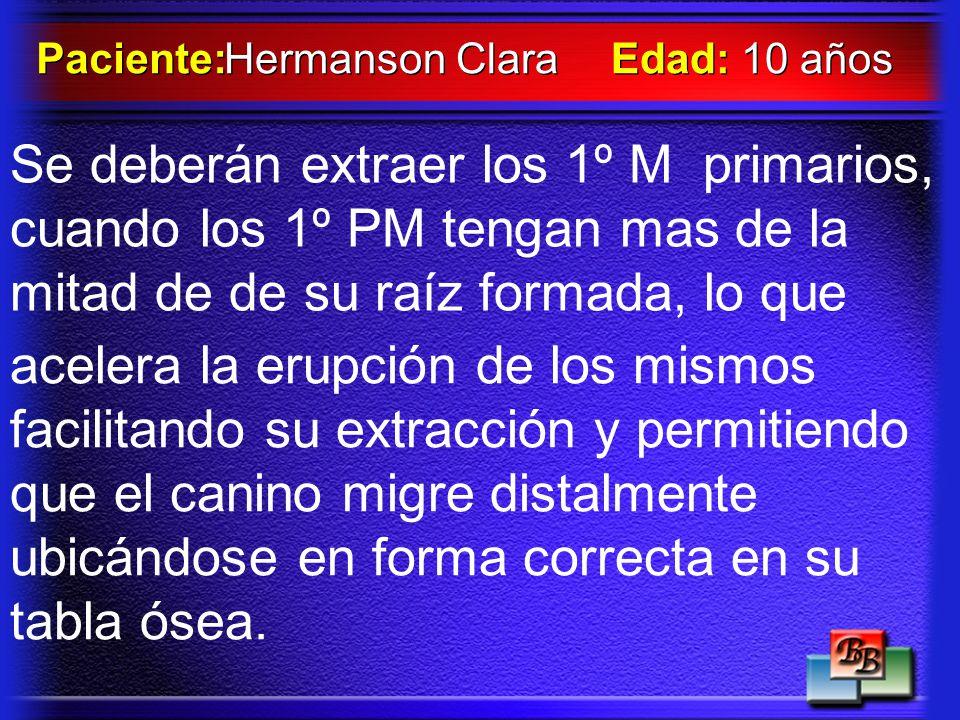 Hermanson Clara Paciente: Edad: 10 años.