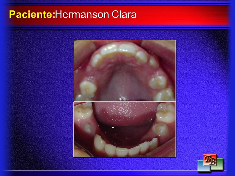 Hermanson Clara Paciente: