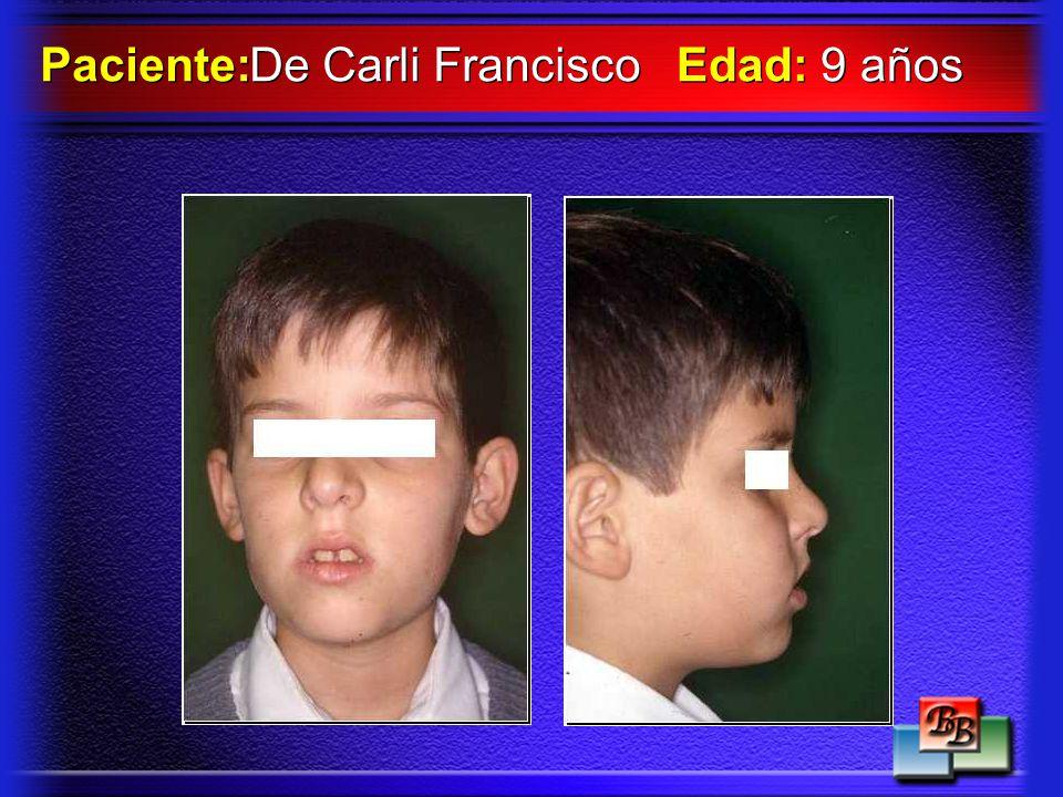 De Carli Francisco Paciente: Edad: 9 años