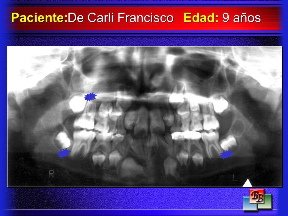 Paciente: De Carli Francisco Edad: 9 años