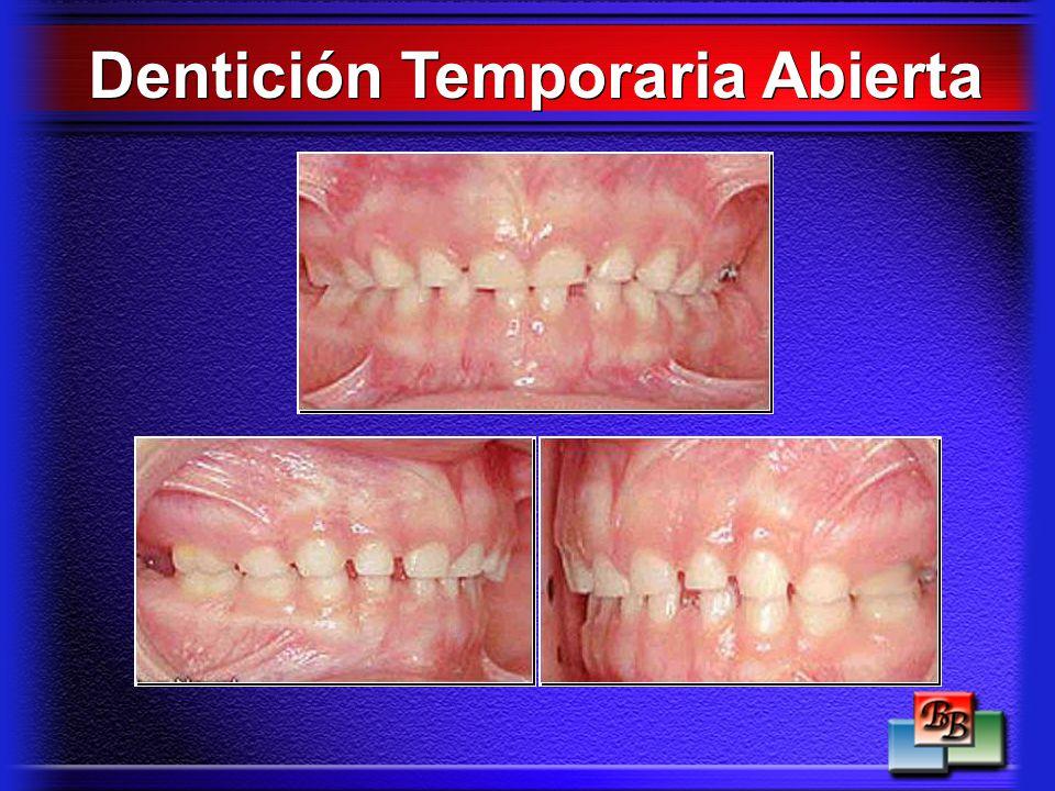 Dentición Temporaria Abierta