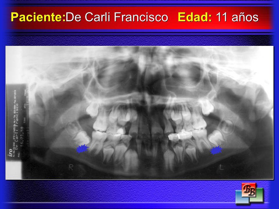 Paciente: De Carli Francisco Edad: 11 años