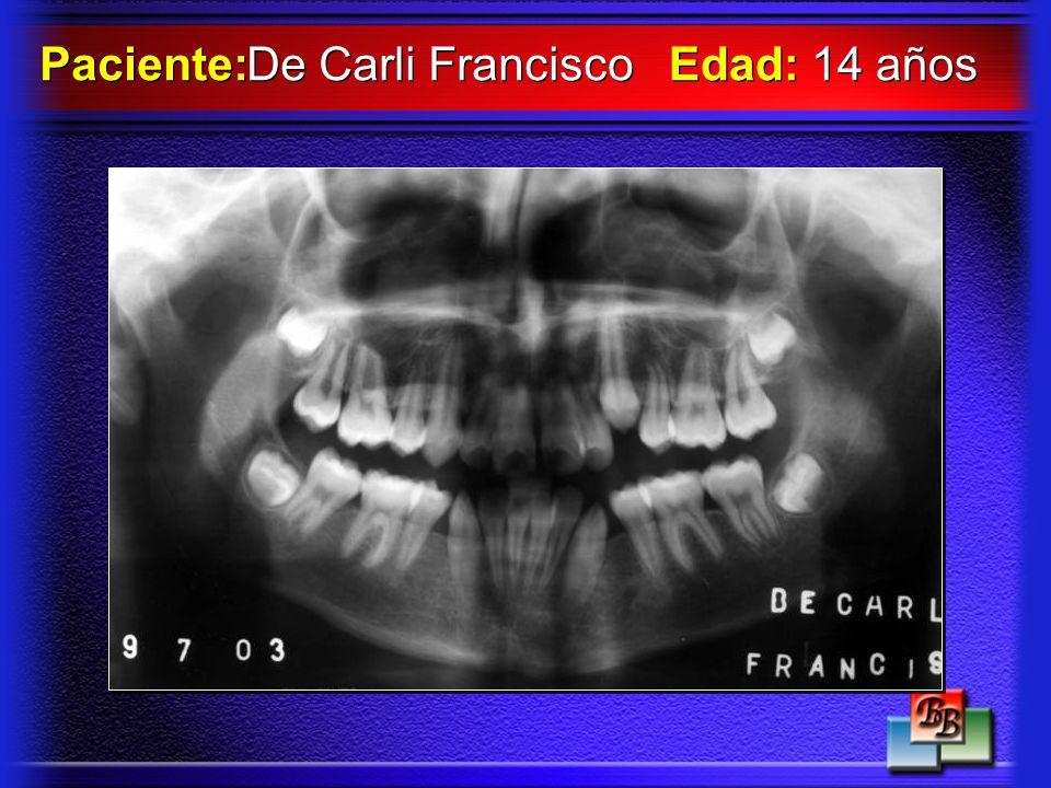 Paciente: De Carli Francisco Edad: 14 años