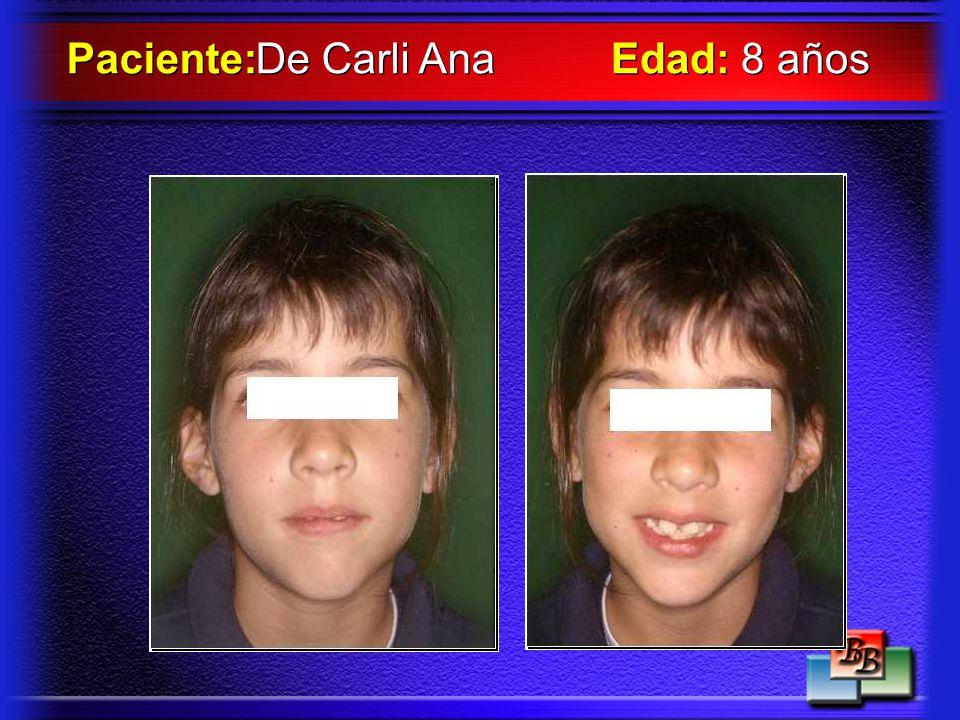 De Carli Ana Paciente: Edad: 8 años