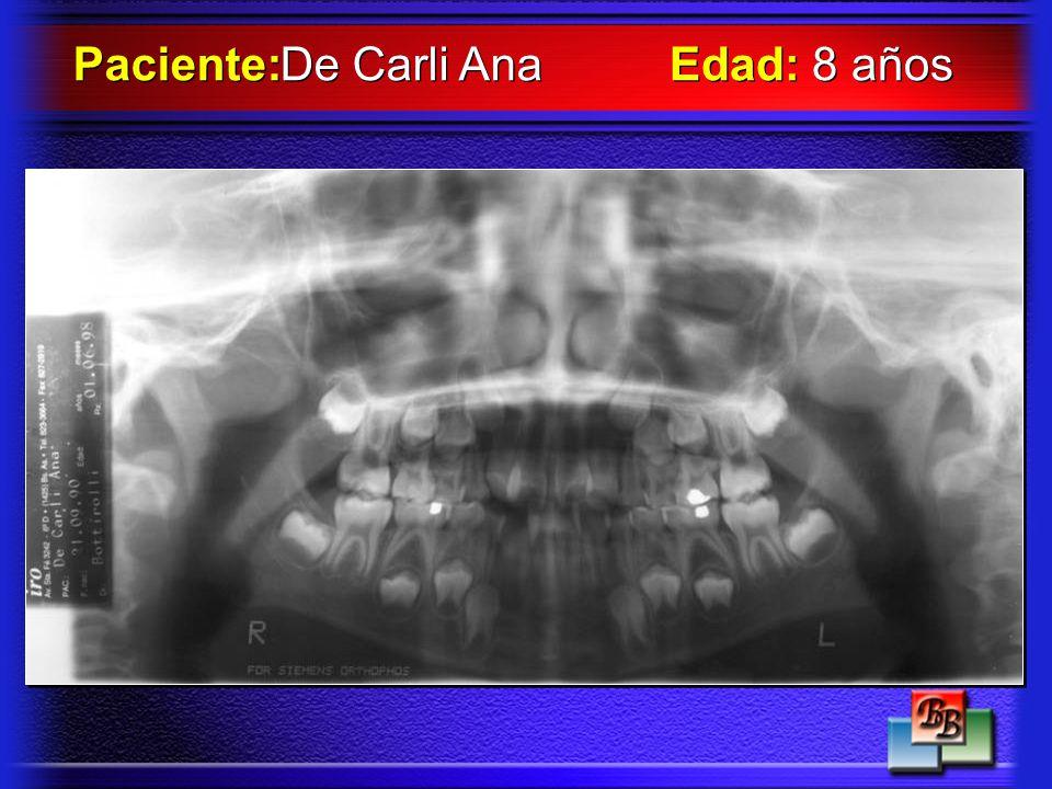 Paciente: De Carli Ana Edad: 8 años