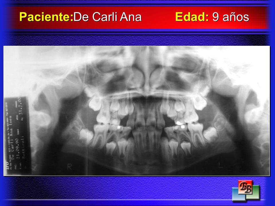 Paciente: De Carli Ana Edad: 9 años