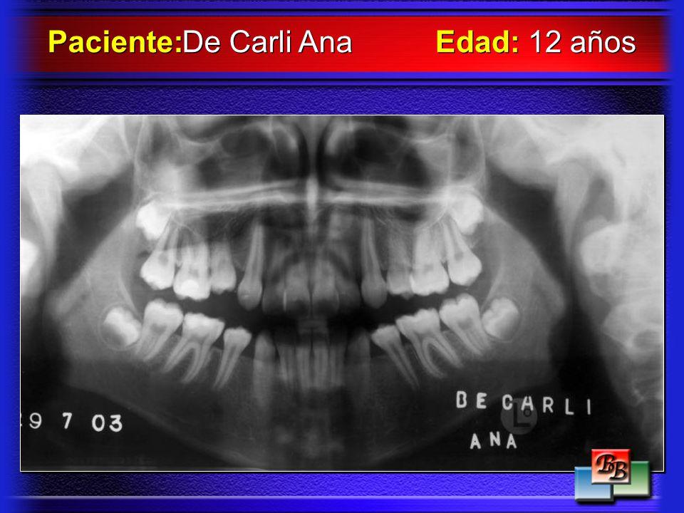Paciente: De Carli Ana Edad: 12 años