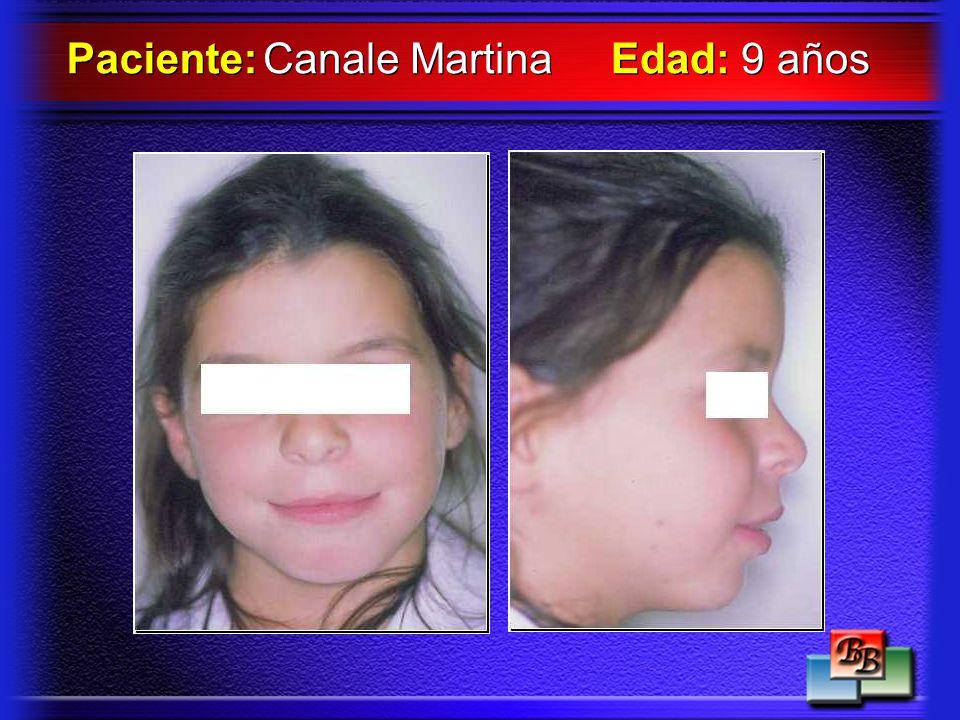 Canale Martina Paciente: Edad: 9 años