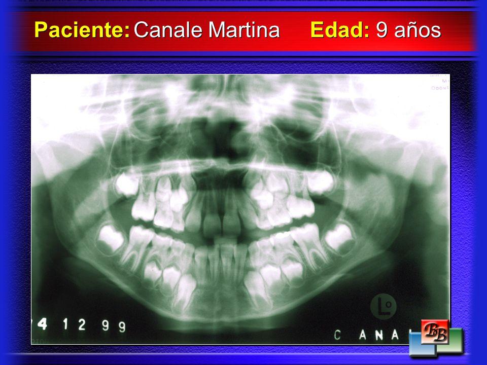 Paciente: Canale Martina Edad: 9 años