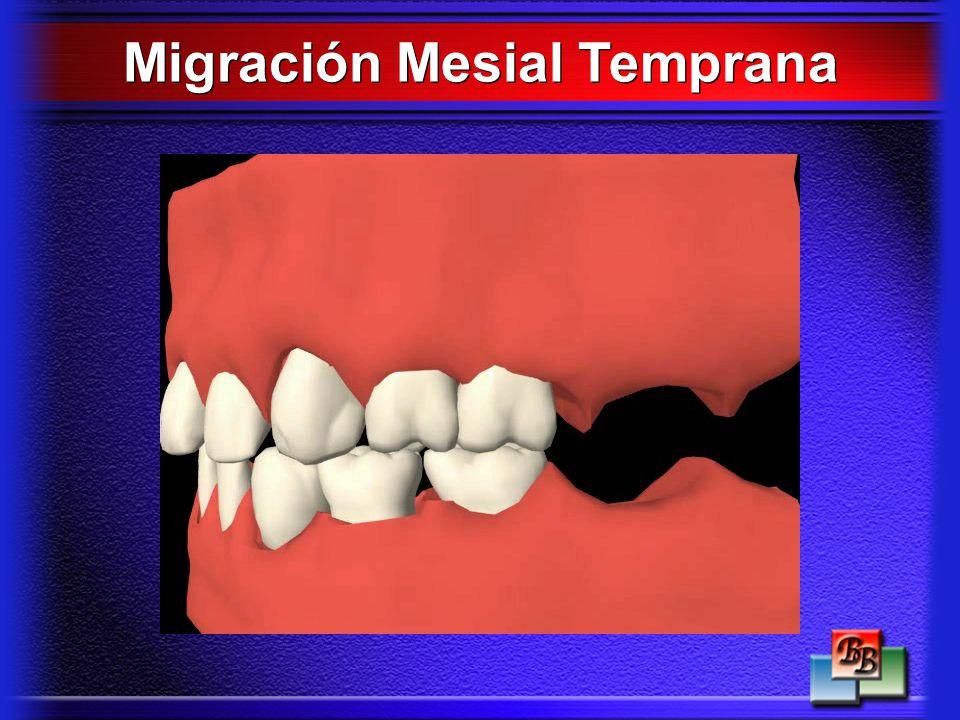 Migración Mesial Temprana