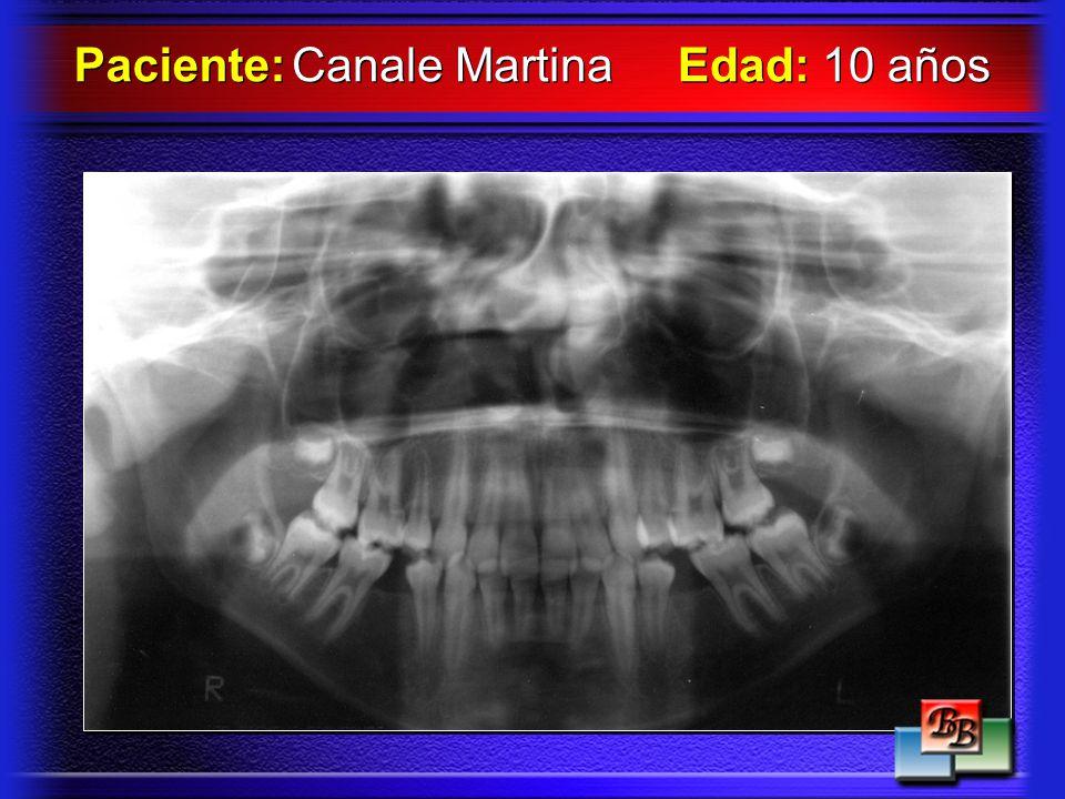 Paciente: Canale Martina Edad: 10 años