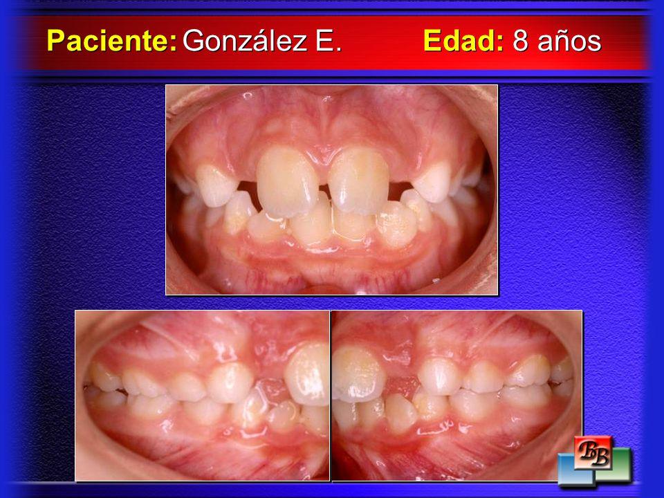 Paciente: González E. Edad: 8 años