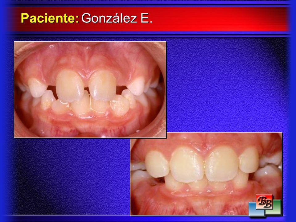 Paciente: González E.