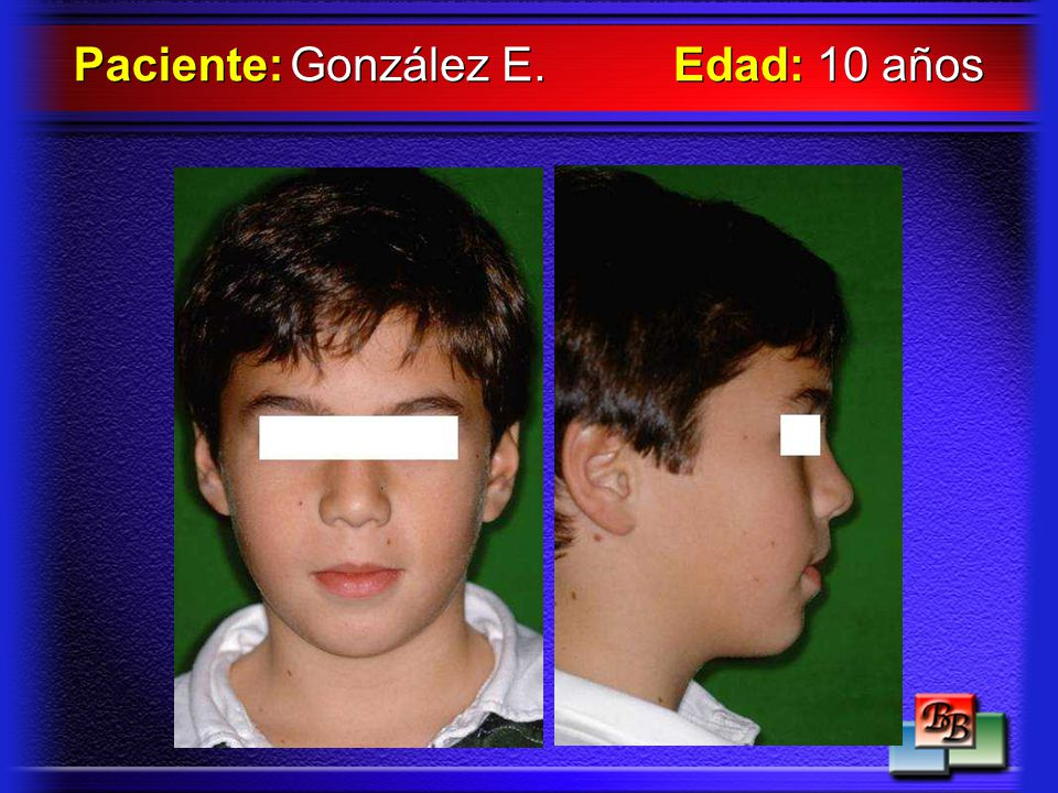Paciente: González E. Edad: 10 años