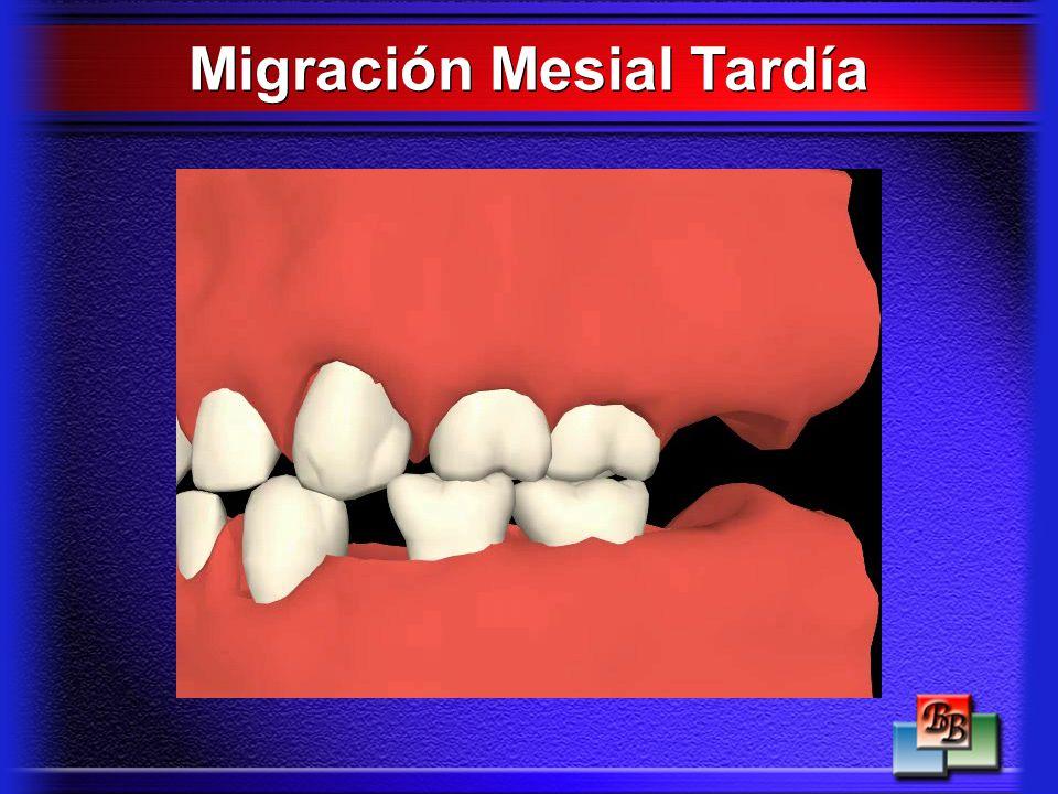 Migración Mesial Tardía