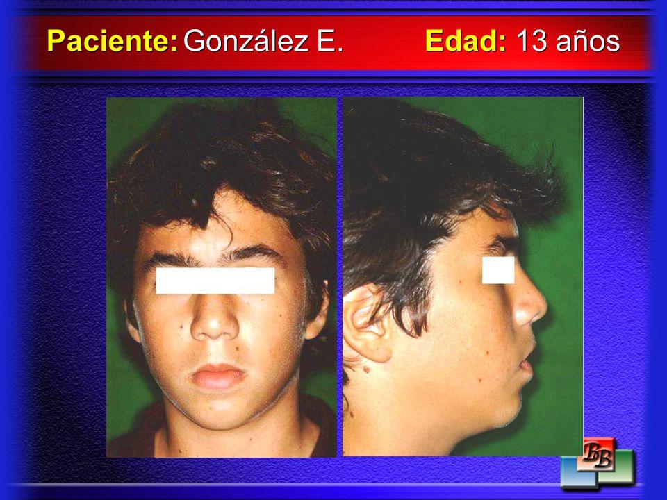 Paciente: González E. Edad: 13 años