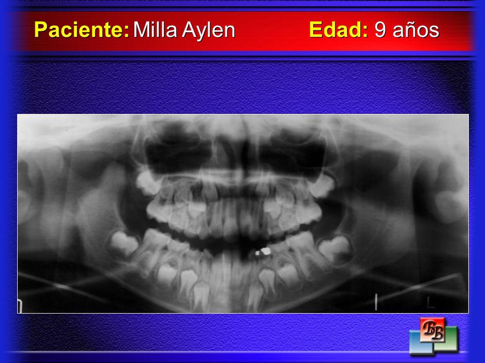 Paciente: Milla Aylen Edad: 9 años
