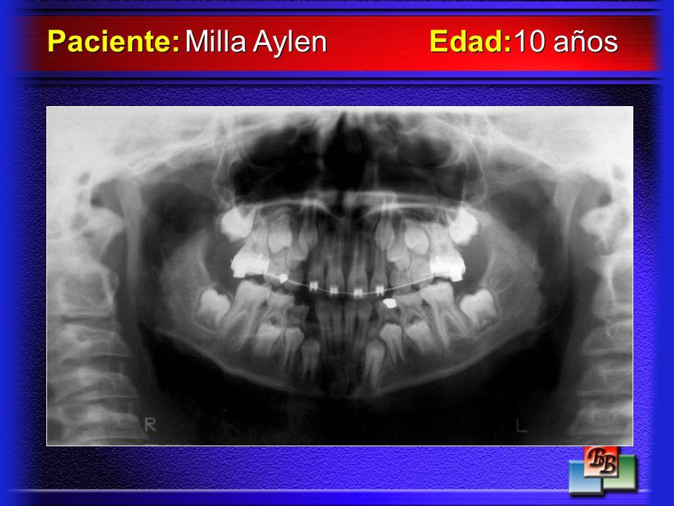 Paciente: Milla Aylen Edad:10 años