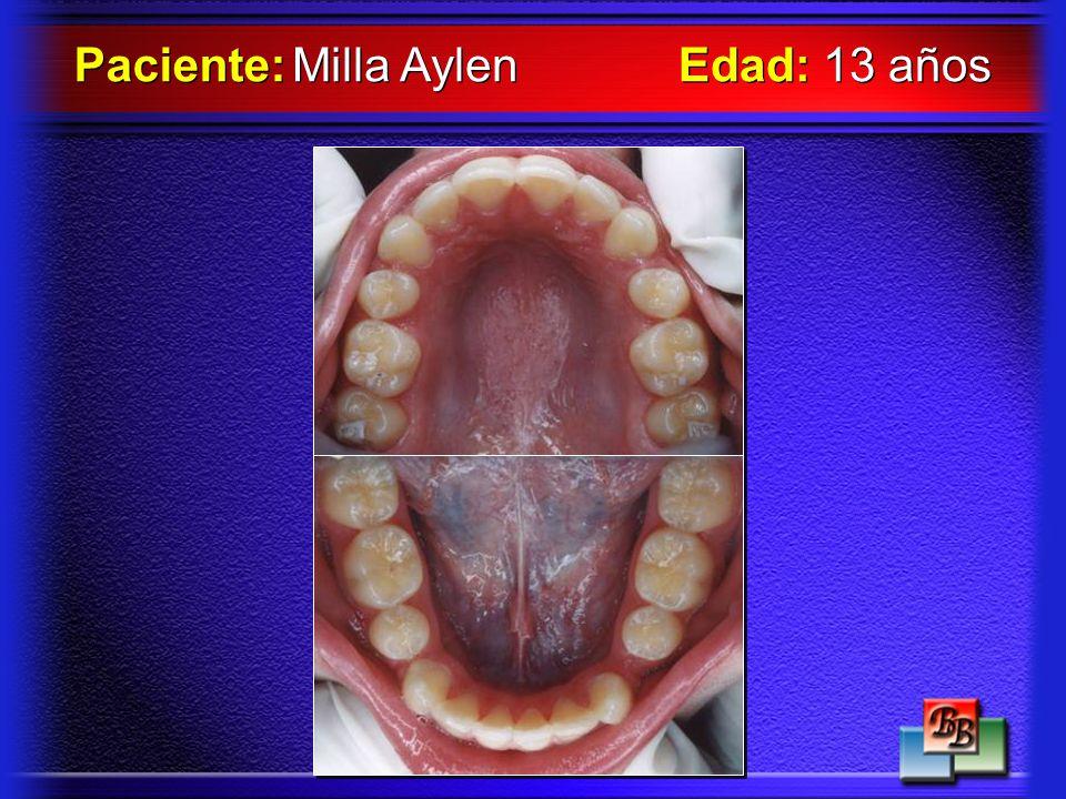 Paciente: Milla Aylen Edad: 13 años