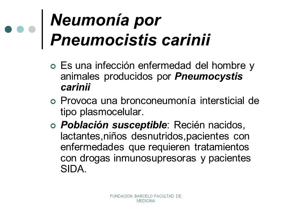 Neumonía por Pneumocistis carinii