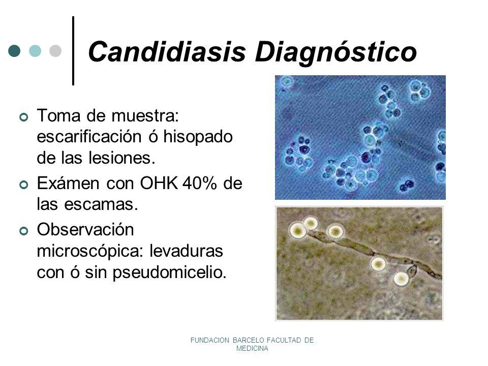 Candidiasis Diagnóstico