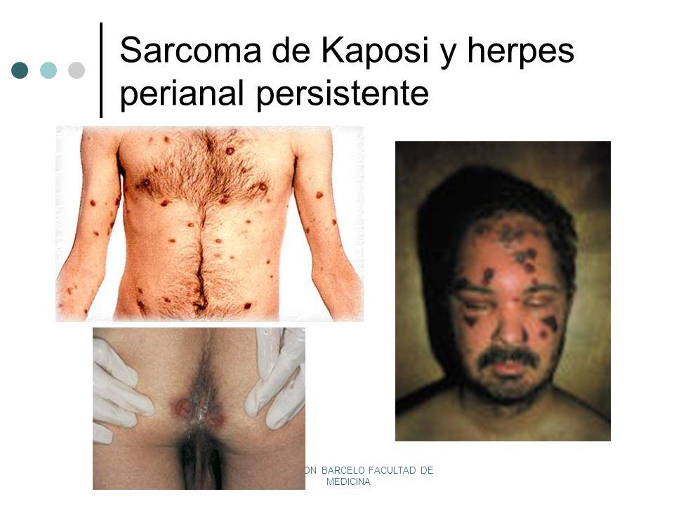 Sarcoma de Kaposi y herpes perianal persistente