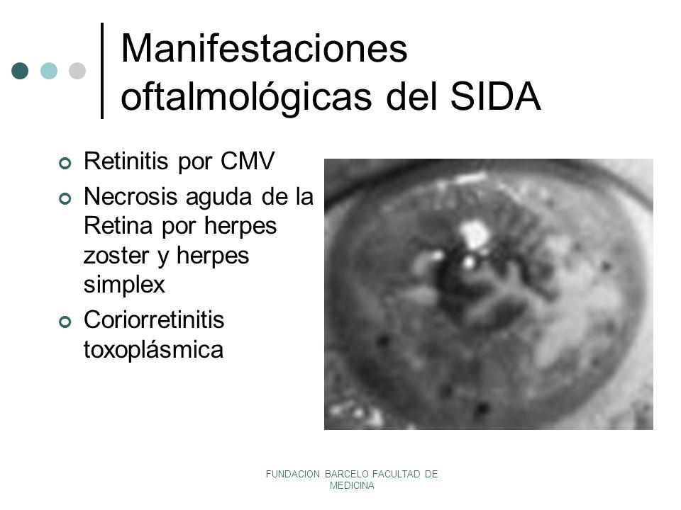 Manifestaciones oftalmológicas del SIDA