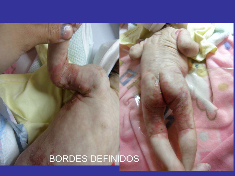 BORDES DEFINIDOS