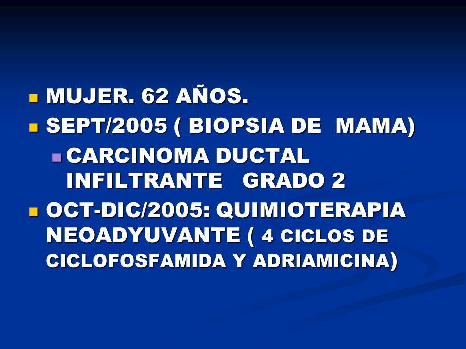 MUJER. 62 AÑOS. SEPT/2005 ( BIOPSIA DE MAMA) CARCINOMA DUCTAL INFILTRANTE GRADO 2.