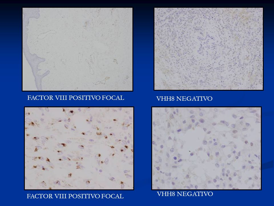 FACTOR VIII POSITIVO FOCAL