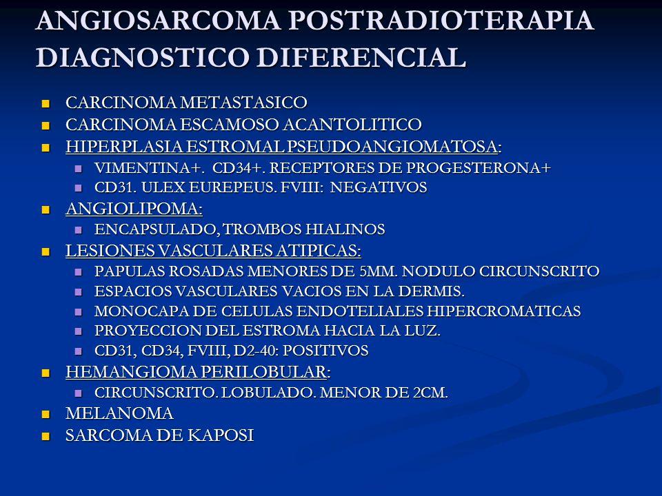 ANGIOSARCOMA POSTRADIOTERAPIA DIAGNOSTICO DIFERENCIAL