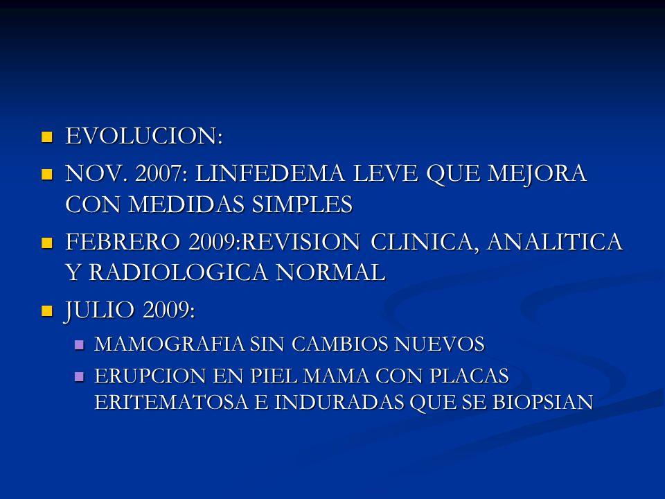 NOV. 2007: LINFEDEMA LEVE QUE MEJORA CON MEDIDAS SIMPLES