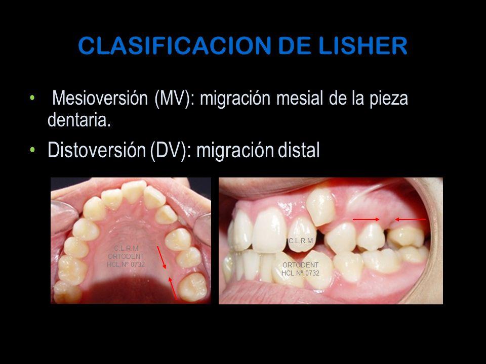 CLASIFICACION DE LISHER