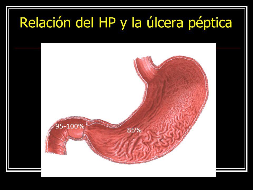 Relación del HP y la úlcera péptica