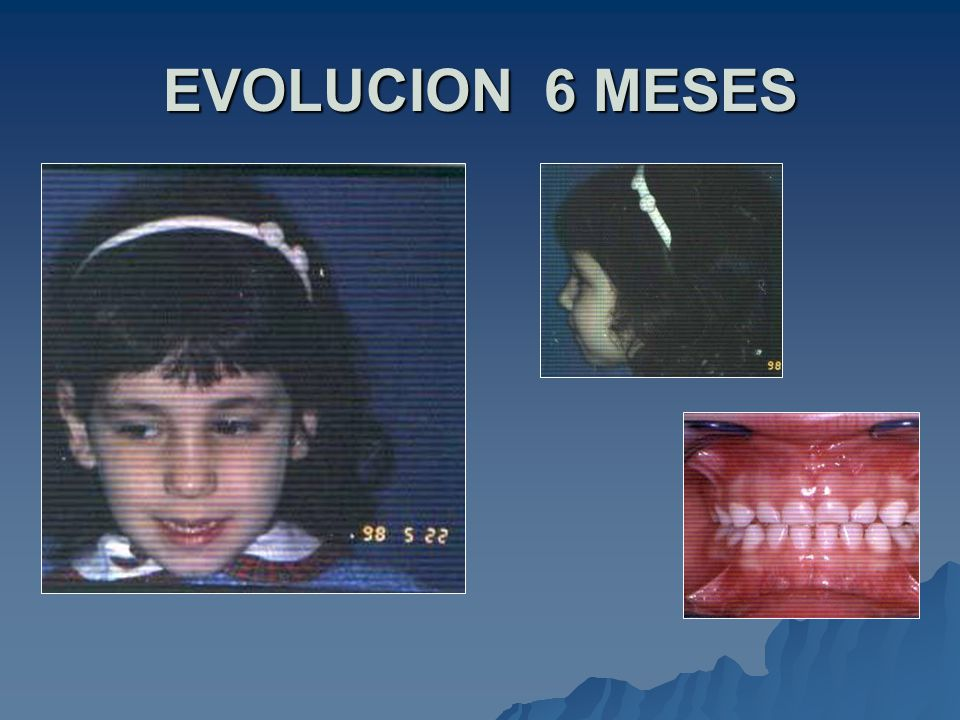 EVOLUCION 6 MESES