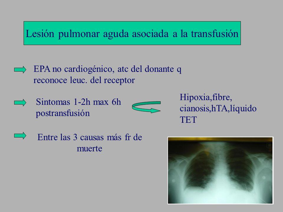 Lesión pulmonar aguda asociada a la transfusión