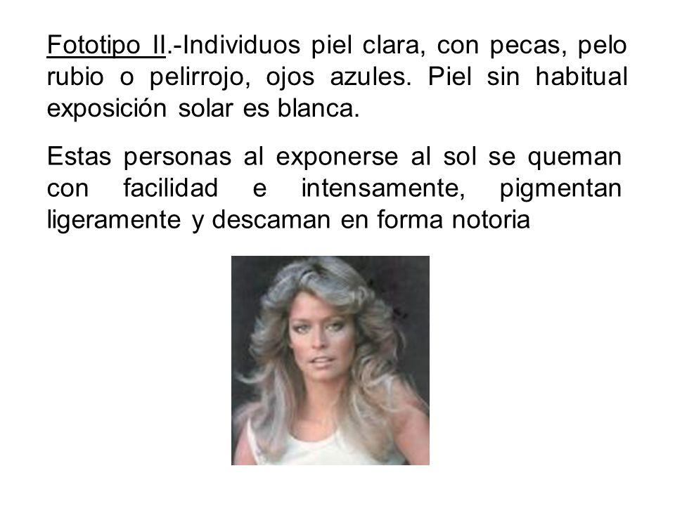 Fototipo II.-Individuos piel clara, con pecas, pelo rubio o pelirrojo, ojos azules. Piel sin habitual exposición solar es blanca.