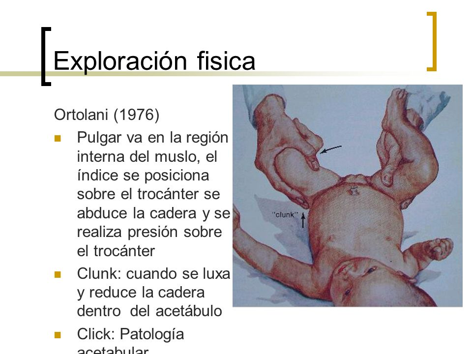 Exploración fisica Ortolani (1976)