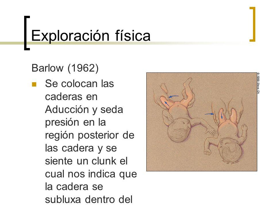 Exploración física Barlow (1962)